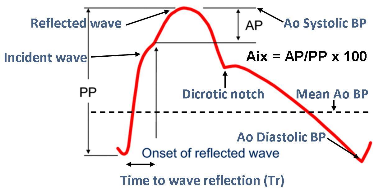 CAP waveform